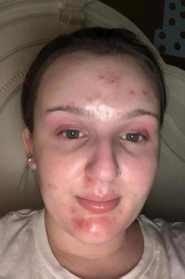 Девушка поделилась простым лайфхаком: как замаскировать угревую сыпь с помощью косметики (результат на фото)
