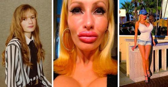 Новые тенденции пластической хирургии: седьмой размер груди, большие губы и кукольные формы лица больше не в моде