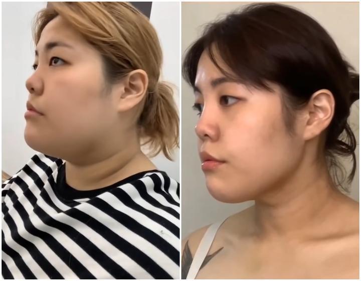 Из-за работы набрала много лишнего веса: девушка из Южной Кореи, похудевшая за 500 дней на 44 кг, посоветовала не перегружать себя диетами