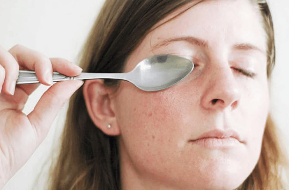 Никакого кофеина после ужина, холодная ложка и другие способы, которые помогут избавиться от мешков под глазами