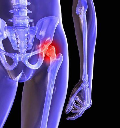 Коксоартроз тазобедренного сустава суставная гимнастика если восполился сустав при хламидиозе