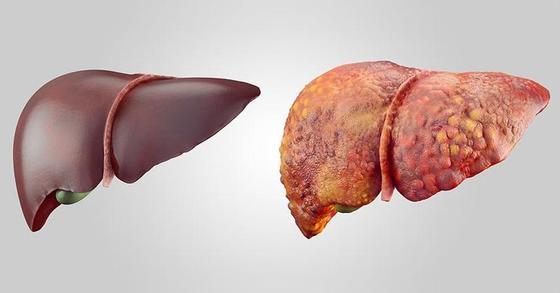 5 УНИКАЛЬНЫХ настоев при ожирении печени
