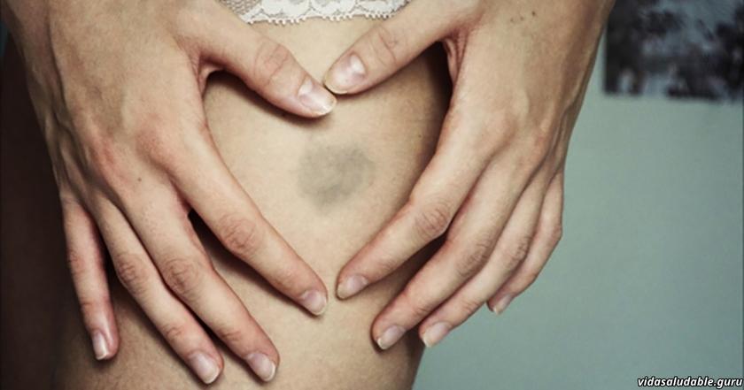 Почему легко появляются синяки на теле