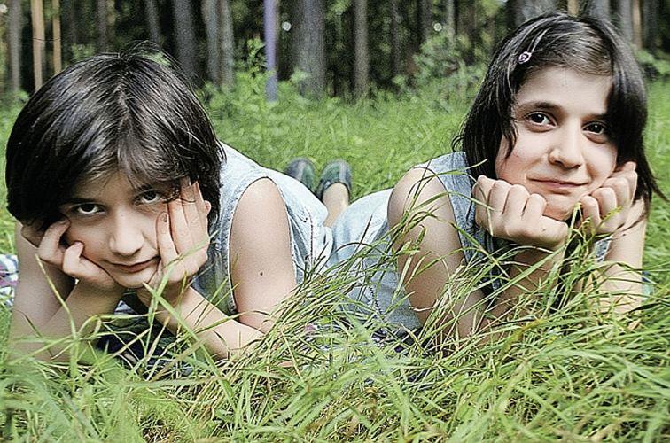 Этих сиамских близнецов разделили, когда им было 11 лет. Но судьба так и не стала к ним благосклонна…