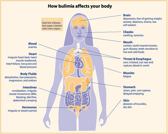 the symptoms and treatment of bulimia nervosa an eating disorder
