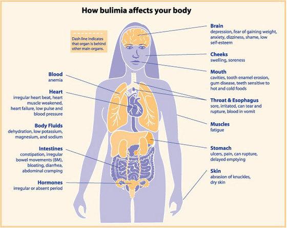 От нарушений пищевого поведения страдает мозг