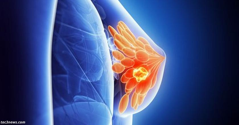 Главная причина рака груди   напиток, который вы пьете каждый день!