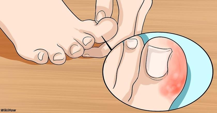 Вот единственный правильный способ избавиться от вросшего ногтя