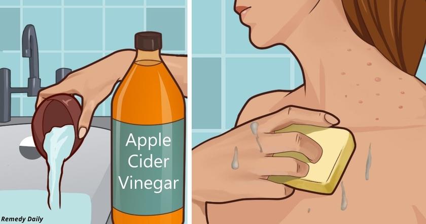 Когда я нанесла на кожу яблочный уксус, случилось нечто невероятное!..