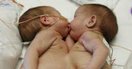 Они родились с одной грудной клеткой на двоих. Родители приняли решение их разделить, и спустя 2 года их не узнать!