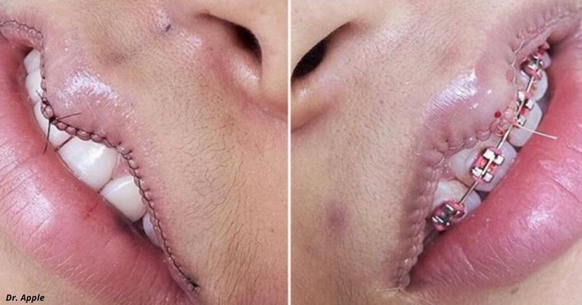 У гламурных девушек в Instagram новая фишка   операции по УМЕНЬШЕНИЮ губ!