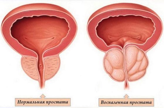 Боль отдающая в половой член и область простаты